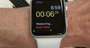 Apple AI watch